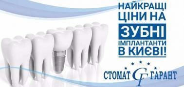 Якісна імплантація зубів у Києві